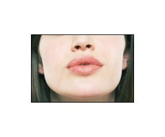 Lip Augmentation… Lip Enhancement.